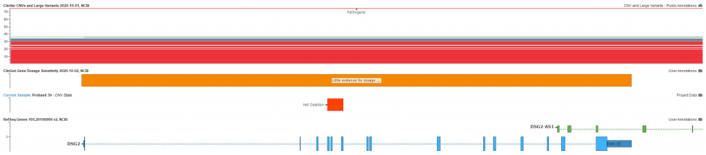 Figure 1. Patient positive for cardiomyopathy disorder has detected heterozygous deletion spanning exons 4-6 of the DSG2 gene. GenomeBrowse plot shows the overlapping gene, little evidence for dosage sensitivity with ClinGen and known pathogenic CNVs in ClinVar.